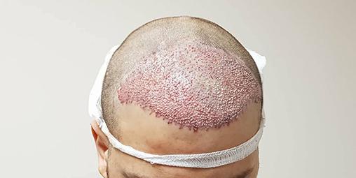 en iyi saç ekim doktoru