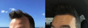 anatolia saç ekim yeliz damar