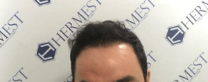 hermes en iyi saç ekim merkezi