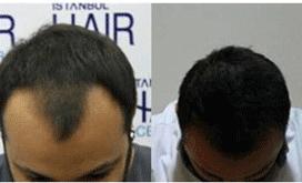 istanbul hair center saç ekim merkezi