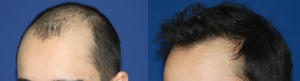 op dr ilhan serdaroğlu saç ekim merkezi